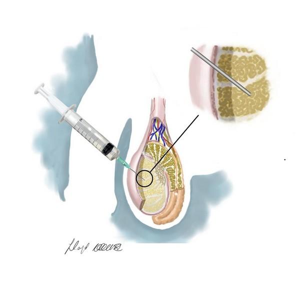 Testicular-biopsy