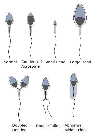 Sperm morphology and fertility